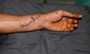 arm manufacturing cut injury
